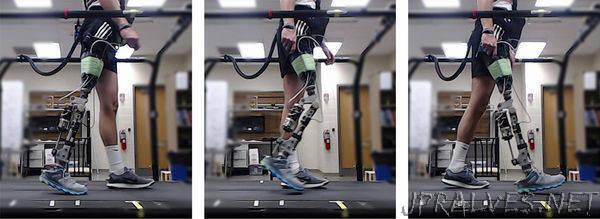 Reinforcement learning steps robotic prosthetics forward