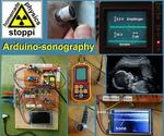 Body-ultrasound Sonography With Arduino